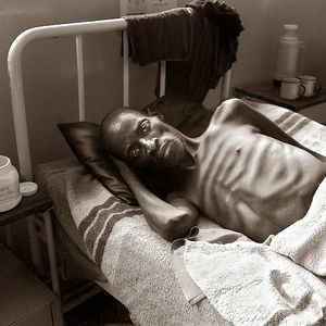 Man dying of AIDS / Zambia