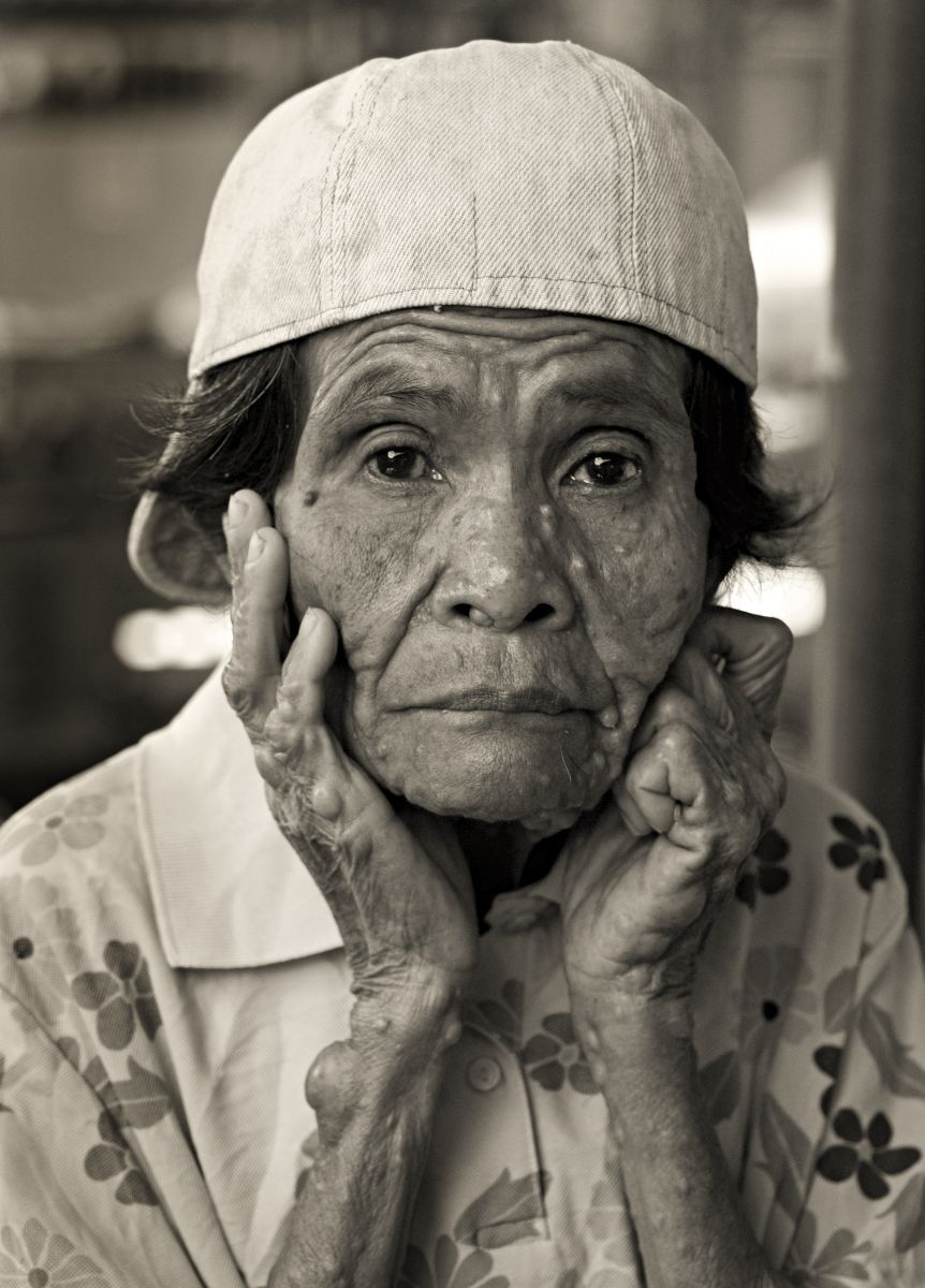 A sickly woman poses for a portrait in Kalibo-Aklan, Phillipines.