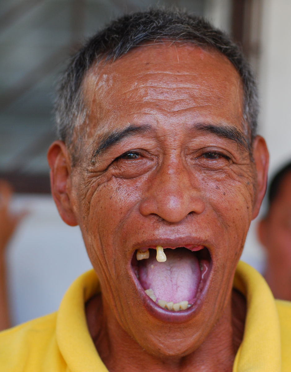 A man with poor teeth smiles during the Ati-Atihan Festival in the Philippines.