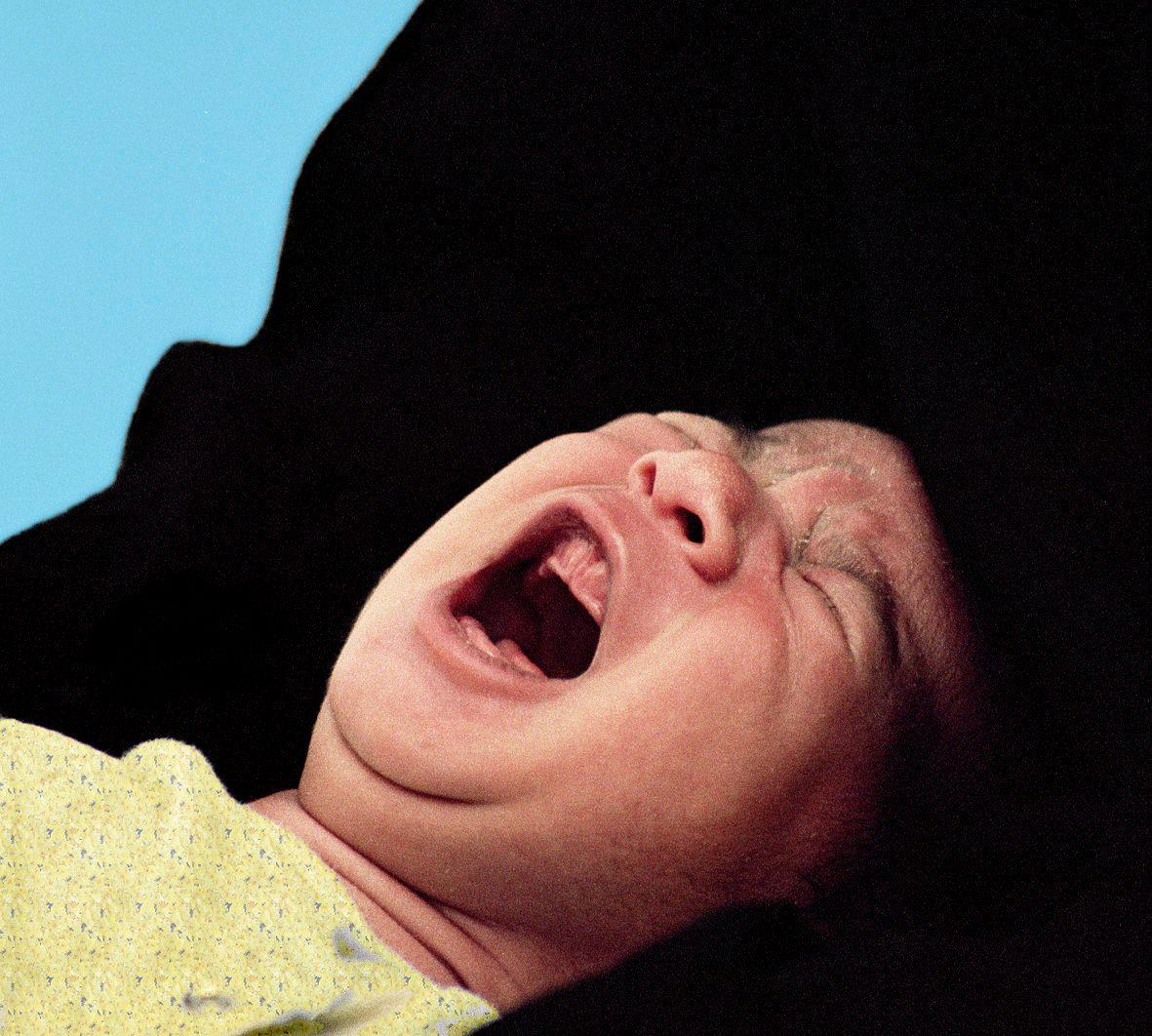 1circumcision_flat