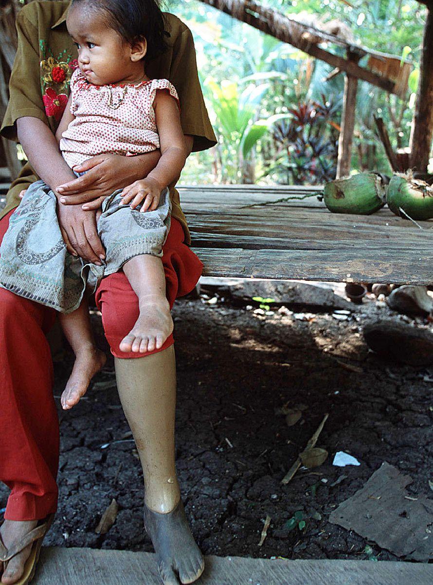A land mine victim.