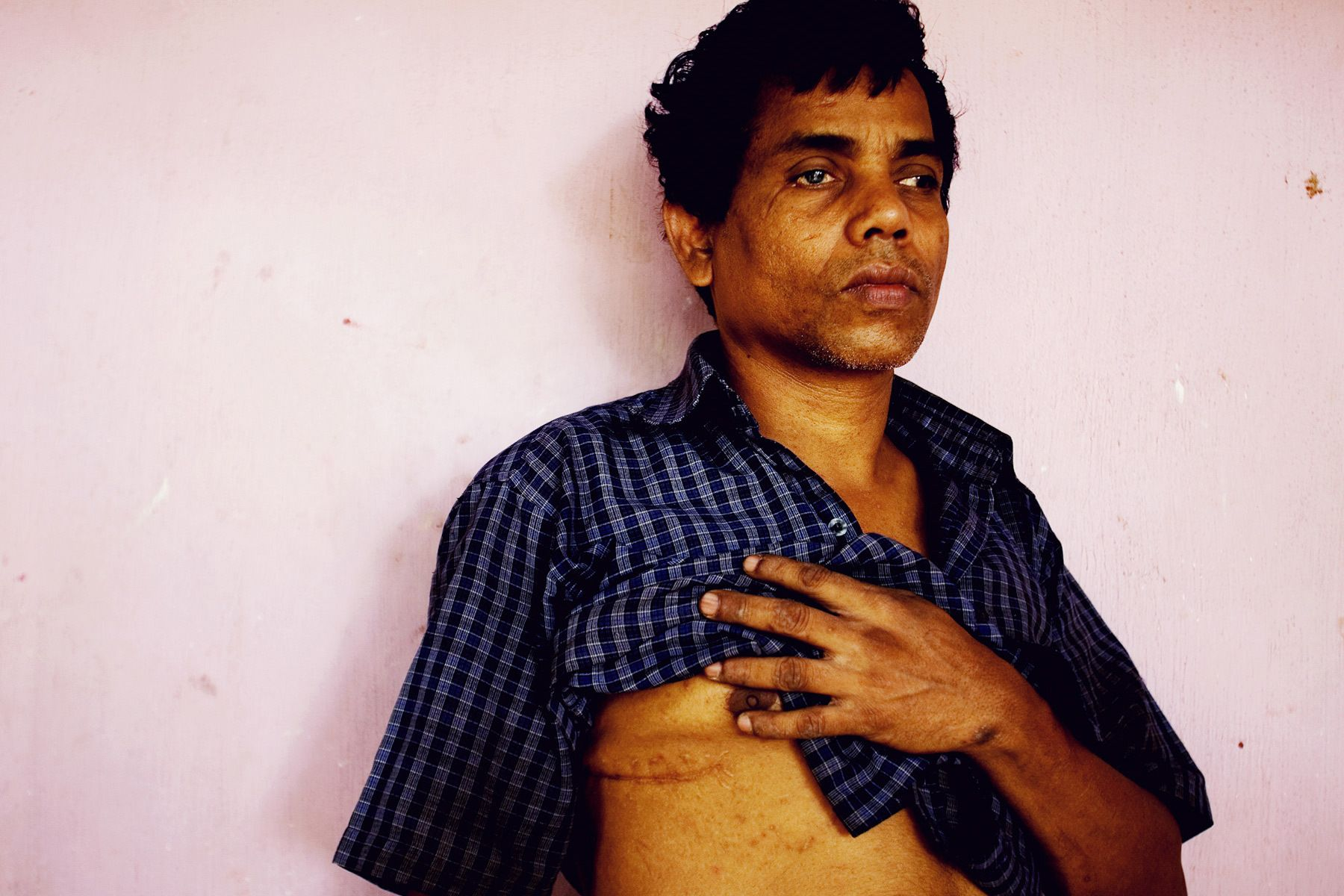 """I became blind in 1998. I was a policeman in my village. The LTTE attacked us around 2 am. They tried to take my rifle but I held it. Then they stabbed my face and chest with a knife. I survived, but since then I became blind."""