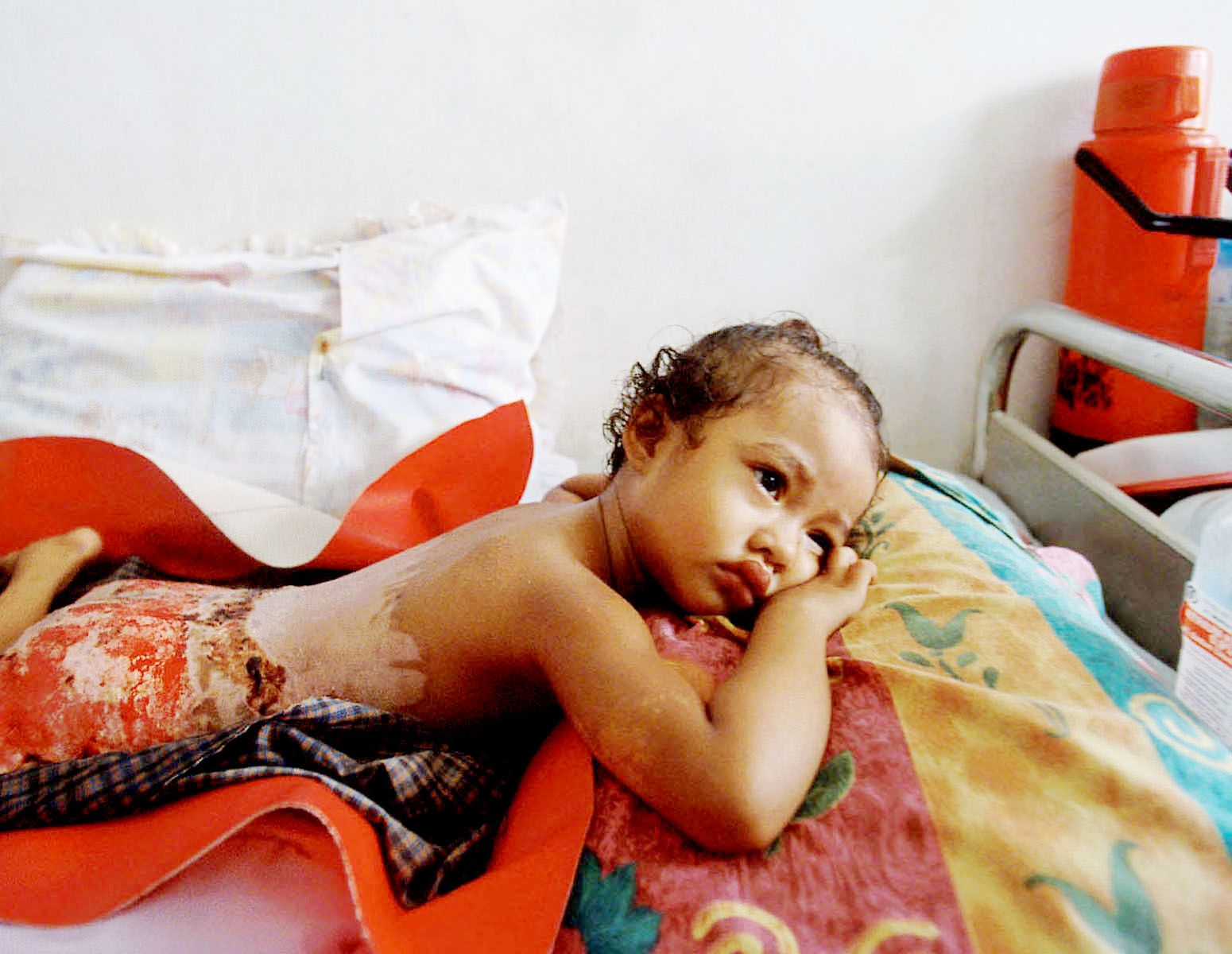 I visited Zainal Abidin hospital.It was easy to find victims of conflict.I saw one little girl who was badly burned.When her village was set on fire by Indonesian soldiers, she could not escape. Some twelve houses were burned down.