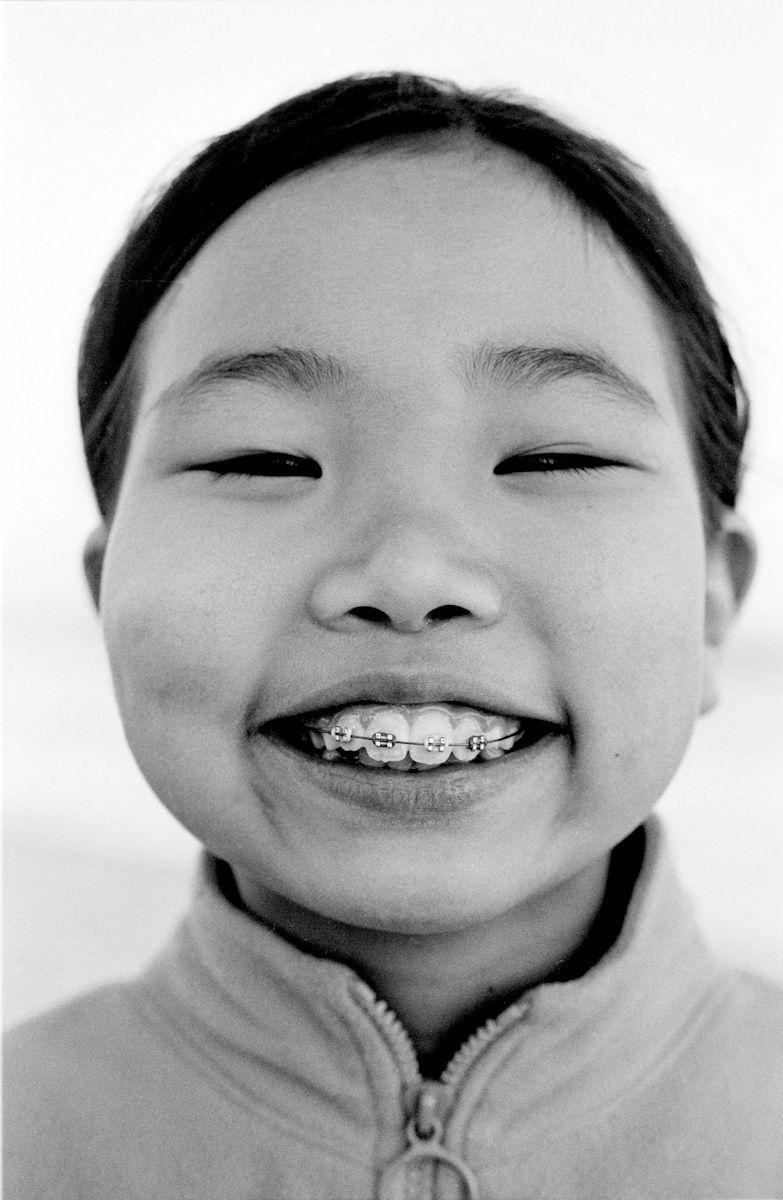 braces photo
