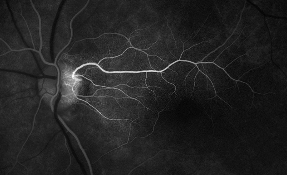 Bus card cilioret artery.jpg