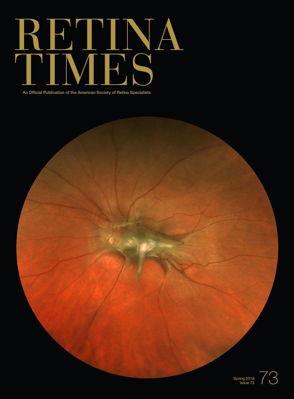 Retina Times cover spring 2018