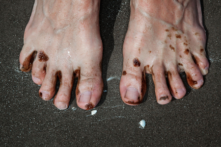 1oil_toes