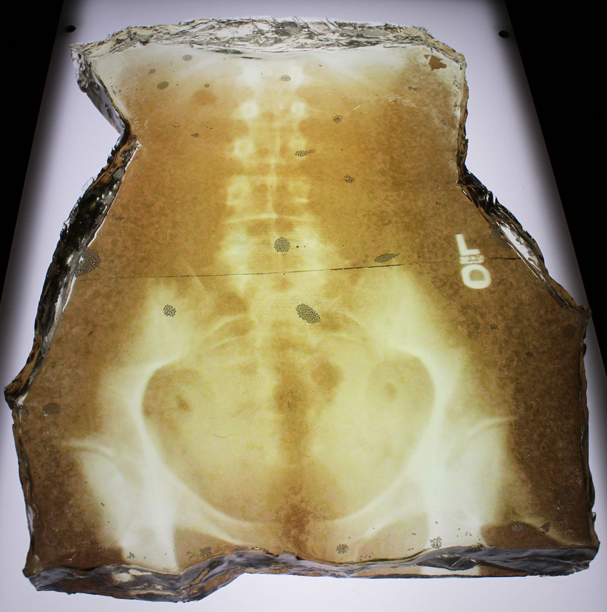 Pelvis - Resin and X-Ray Film Art