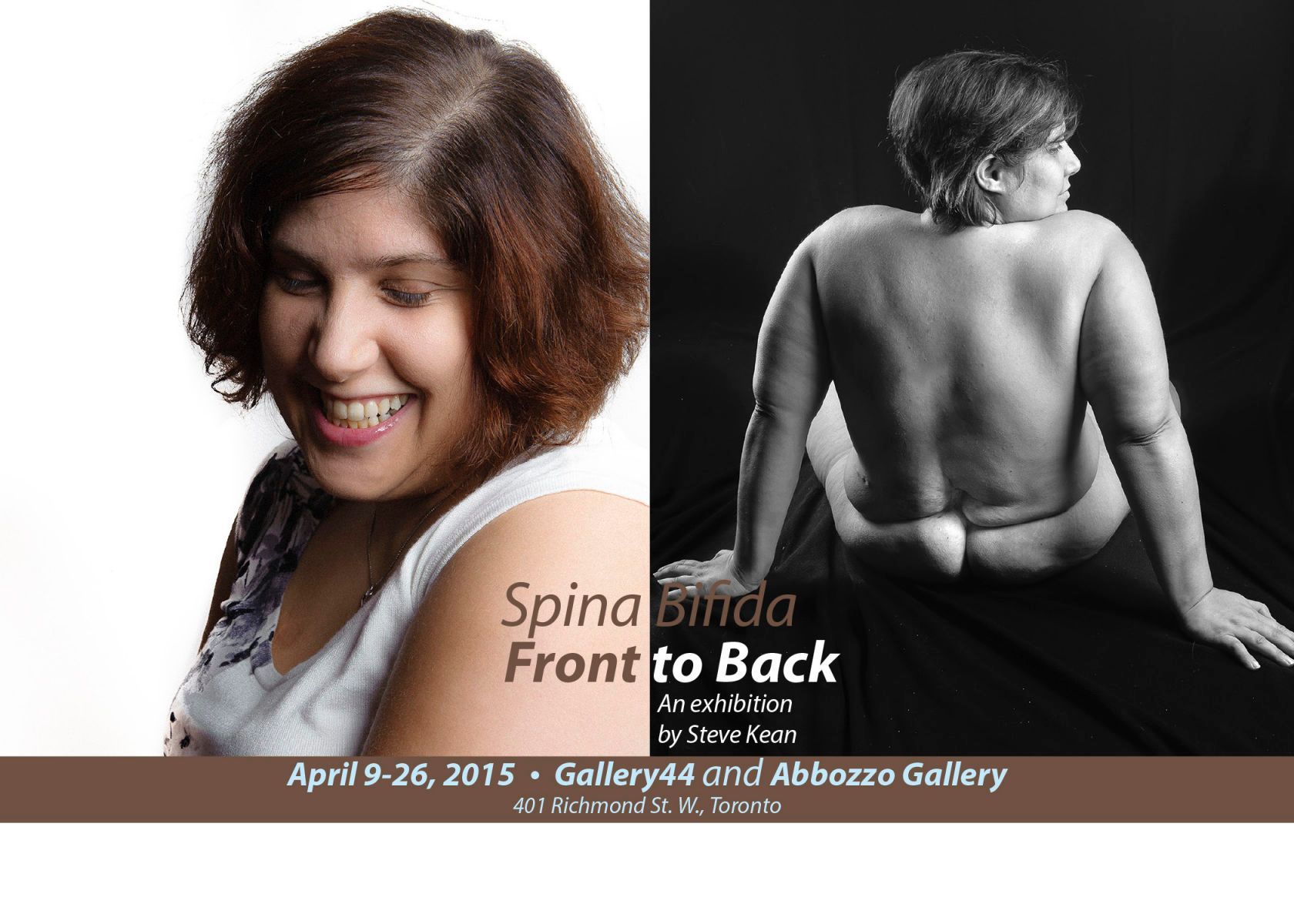 1spina_bifida_postcard_steve_website_final.jpg