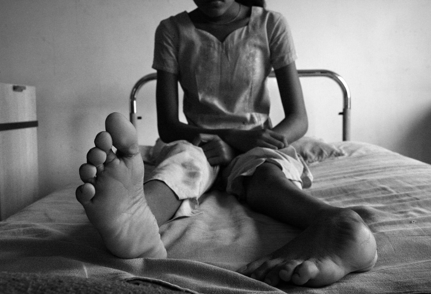 1club_foot_girl_nepal