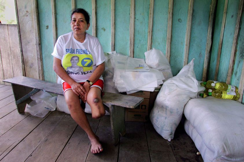 Modesta Briones in her house near Parahuaco Oil Well #2. Doctors amputated her lower leg because of a cancerous tumor.