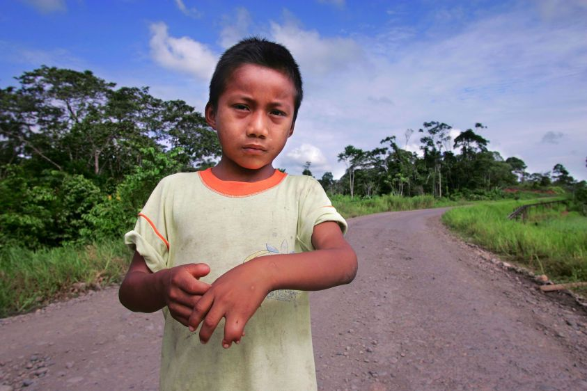 Nine-year-old Jairo Yumbo shows his deformed hand on the Via Auca in front of his home in Rumipamba.