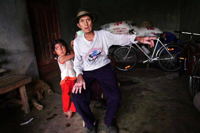 Uterine cancer victim Rosana Sisalima with her granddaughter at their home in San Carlos in 2004. Rosana died in 2006.