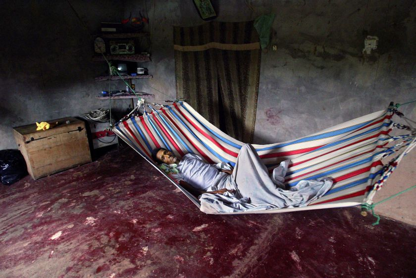 Angel Toala lies in his home in Shushufindi one day before he died of stomach cancer.