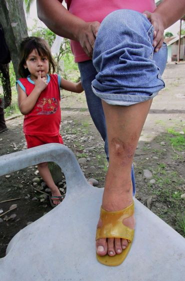 Flor Valarezo with her daughter Liliana Cecilia in Sacha, shows the skin problems on her leg which doctors say could be cancer.