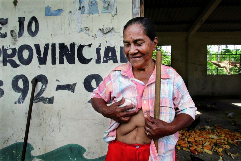 Maria Villacis shows the scars from four operations on her liver and gallbladder at her farm near Guanta Oil Well #8.