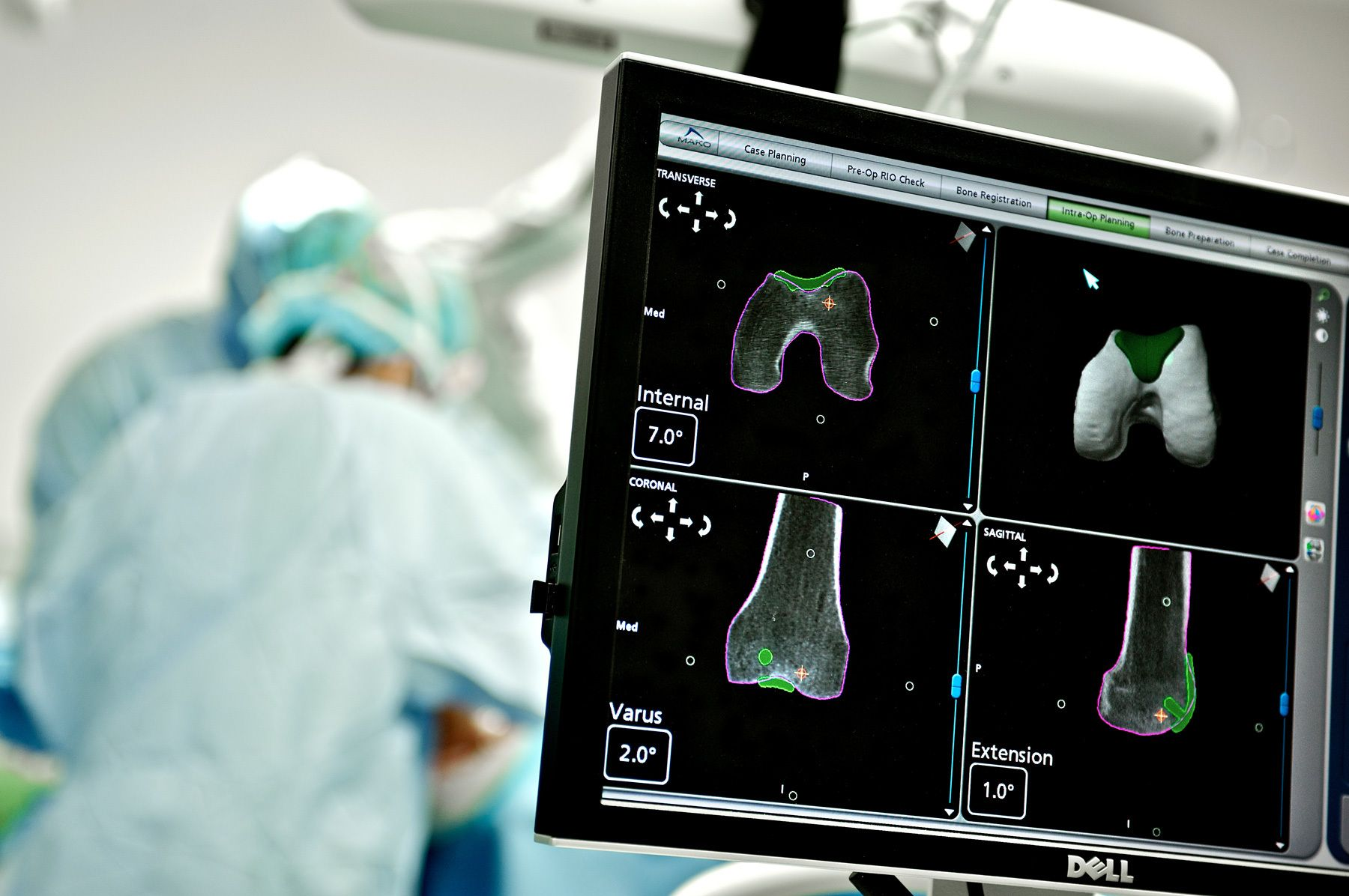 Baptist Health South Florida / Mako Surgery