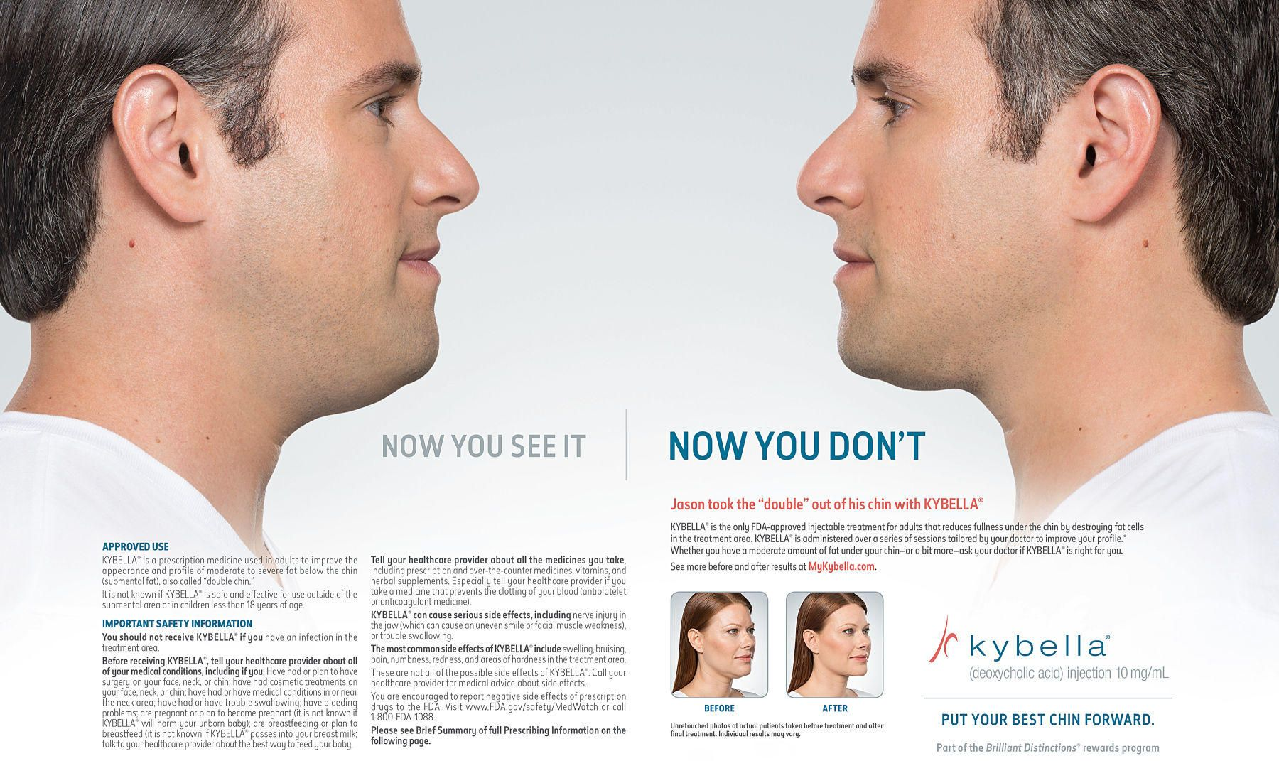 1kybella_ad_male_spread