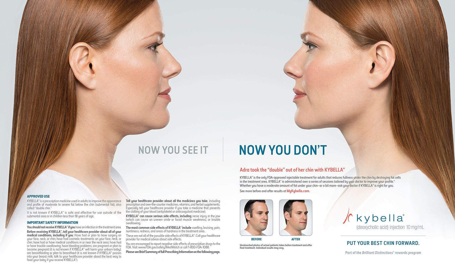 1kybella__ad_female_spread